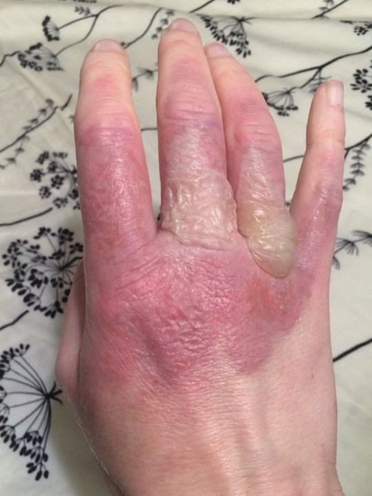 Courtney experienced painful burns after slicing hundreds of limes