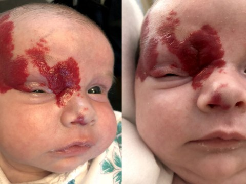 Baby's birthmark was actually a tumour that could have made her go blind
