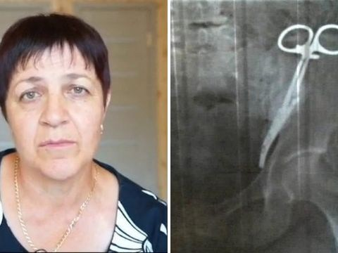 Woman had medical clamp inside her for 23 years after caesarean