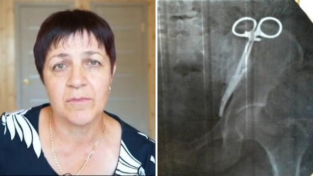 Woman told medical clamp from caesarian 23 years ago is still inside her