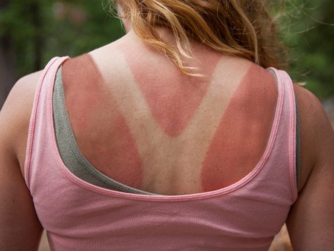 How to soothe painful sunburn