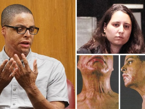 Student burnt by high school chemistry experiment awarded $60m by court