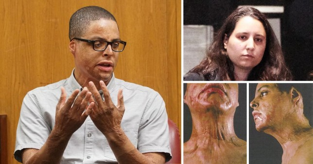 Student disfigured by high school chemistry experiment awarded $60m by court