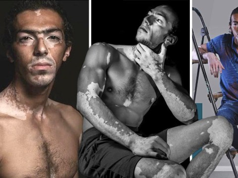 Man who was bullied for vitiligo is now a model who sees his skin as art