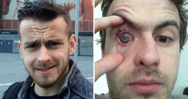 Keen sportsman left blind in right eye after wearing contact lenses in shower