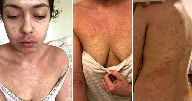 Woman ditches all meds to cure eczema naturally | Metro News