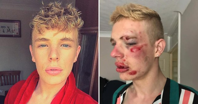 Young man left with sickening injuries after being beaten up 'for being gay'