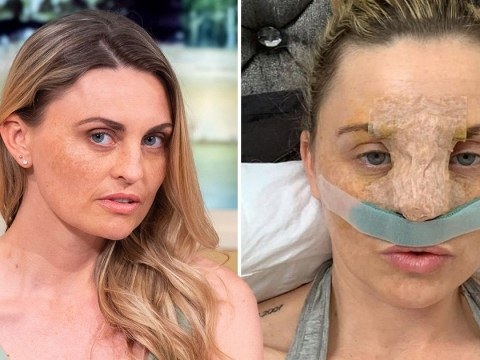 Model who got NHS nose job by faking depression signed off work with anxiety