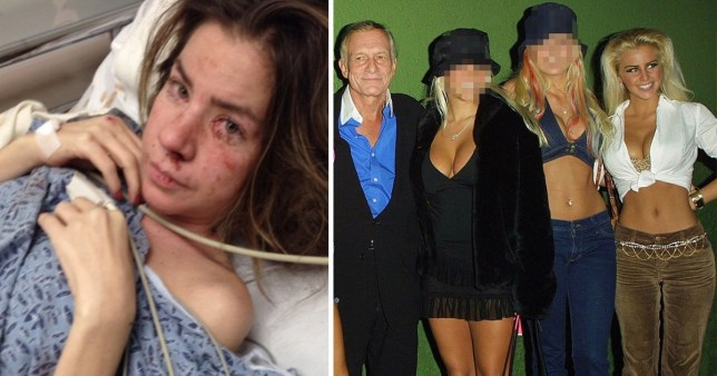 Jessica Langdon partied at the Playboy mansion before descent into alcohol addiction (Picture: MDW Features)