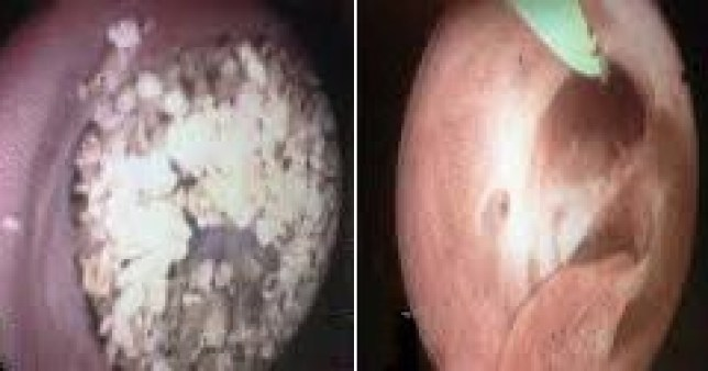 'Kidney-stone like growths inside a man's penis