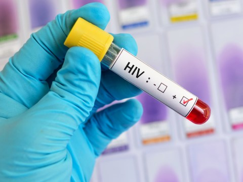 Aids virus wiped out in gene testing that could be step towards cure