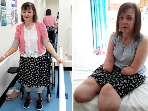 Carer collapses at work and wakes up with both arms and legs amputated