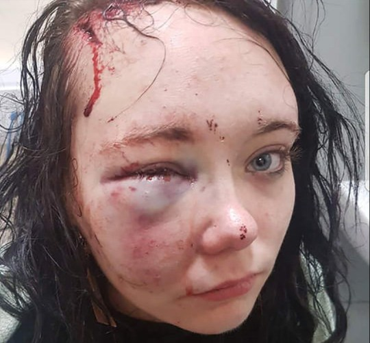 Megan McPartlin beaten so badly by boyfriend it left her permanently brain damaged
