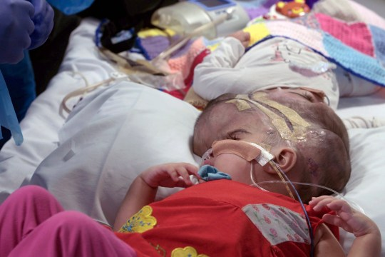 Undated handout photo issued by Great Ormond Street Hospital of two-year-olds Safa and Marwa Ullah, from Charsadda in Pakistan, before a surgery to separate their heads at the hospital in London. PRESS ASSOCIATION Photo. Issue date: Monday July 15, 2019. The sisters, who were craniopagus twins, underwent three major operations to separate their heads at Great Ormond Street. The last operation, which saw the girls finally separated, took place on February 11 this year. See PA story HEALTH Twins. Photo credit should read: Great Ormond Street Hospital/PA Wire NOTE TO EDITORS: This handout photo may only be used in for editorial reporting purposes for the contemporaneous illustration of events, things or the people in the image or facts mentioned in the caption. Reuse of the picture may require further permission from the copyright holder.