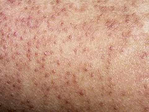 Little bumps on your thighs? Here's how to deal with keratosis pilaris