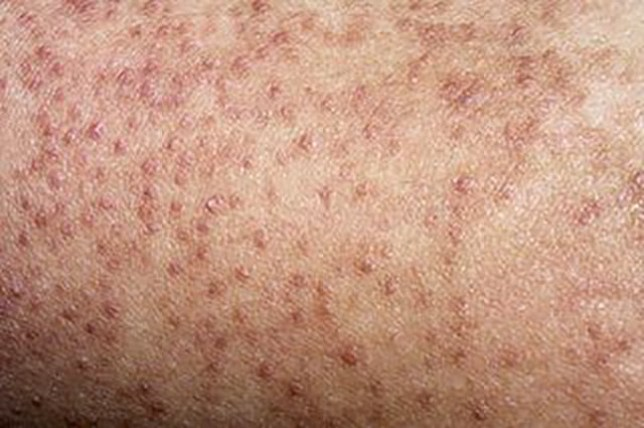 A close up of keratosis pilaris