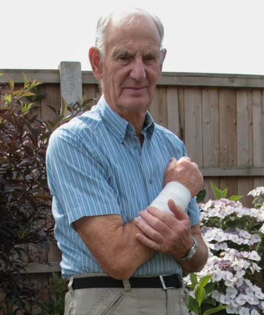 Pic By / CATERS NEWS (PICTURED: Charles Browns arm after attack. Pic taken 19/07/2019) - A pensioner was left bleeding in a ditch after he was attacked by a dog that ate a chunk of his arm - as the owner fled she scene shouting: Hes had his injections, youll be fine.Police have launched a hunt for the dog owner after Charles Brown, 82, from Derby, was left with exposed bone and needing a skin graft on his arm after he was attacked as he walked through a park last week. - SEE CATERS COPY