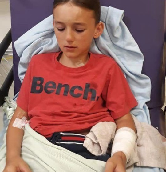 """A child dog attack victim """"thought he was going to die"""" after he was savagely mauled by a dog at the start of his summer holidays. Cooper Johnstone, 11, went to call for a friend on Wednesday [July 24] when his family say he was attacked by a Staffordshire Bull Terrier in Ormskirk, Lancashire. Caption: Injuries suffered by Cooper Johnstone, 11, from Ormskirk, Lancashire, after he was attacked by a Staffordshire Bull Terrier on July 24, 2019"""