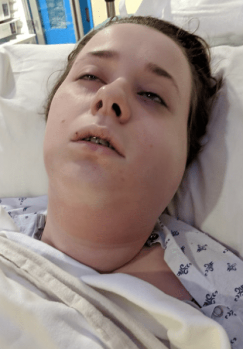 Baker 20 Almost Died Of Sepsis After Dentist Took Her Wisdom Teeth Out Metro News
