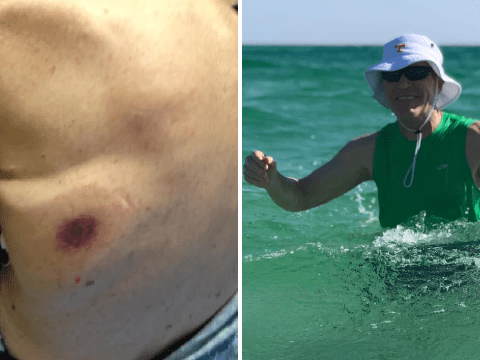 Small red mark on beachgoer's back was flesh-eating bacteria that killed him