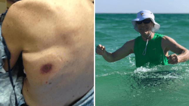 Dave Bennett's red spot that turned out to be flesh-eating bacterial infection. Dave Bennett swimming