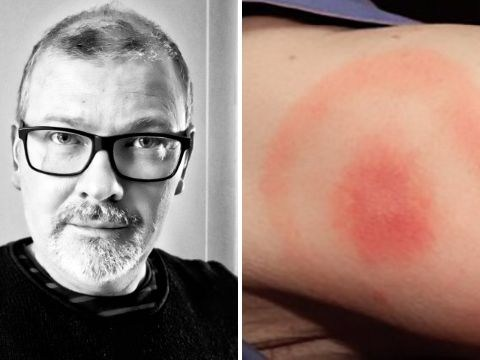Man thought he would die after symptoms of Lyme disease were mistaken for a stroke