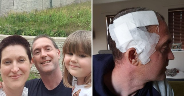 Split image: one features Ross Dinmore with a bandage around his head, the other shows Ross, his wife and daughter