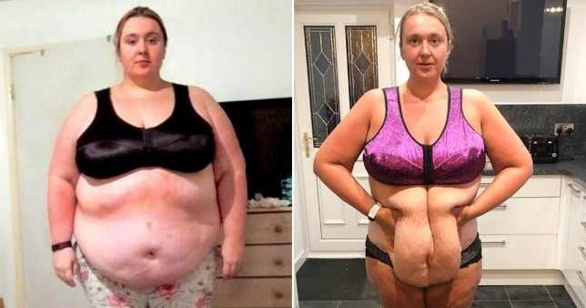 Woman is raising money to remove 15lb of painful excess skin after dramatic weight loss
