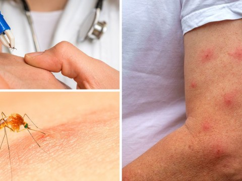 Ticks, mosquitos and wasps: When should you seek medical attention for an insect bite?