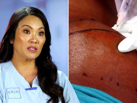 Dr Pimple Popper removes huge bump from patient's neck: 'It's like pulling cheese off a pizza'