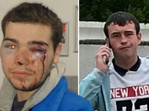 Judge slams prosecutors for 'utterly wrong' charge after autistic boy was beaten