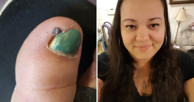 Tiny black spot on woman's toe was the 'deepest ingrown nail doctors had seen'