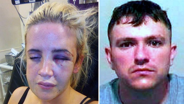 Gemma Humphrey was beaten up so badly by her ex partner that she needed to have screws and metal plates inserted into her face