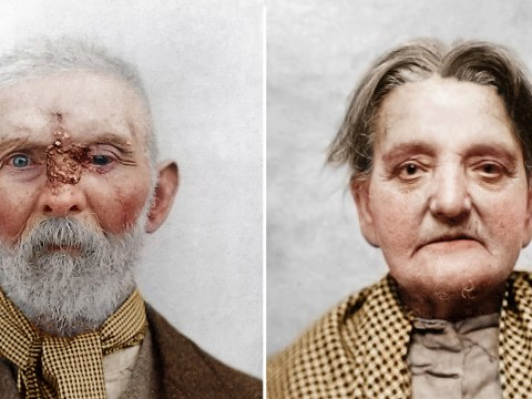 Artist brings asylum patients from the Victoria era back to life by colourising their photos