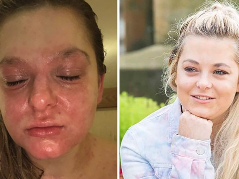 Woman says 'miracle' £7.99 cream saves her from the pain of severe eczema