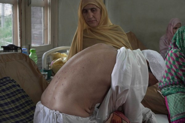 Mohammad Siddiq, 70, who was wounded a day before shows his pellet ridden back as his wife stands beside him inside a hospital in Srinagar, Indian controlled Kashmir, Sunday, Aug. 18, 2019. The elderly Kashmiri man says he was wounded when an Indian police man fired a pellet gun at him while returning home from a mosque badly damaging his left eye. (AP Photo/ Dar Yasin)