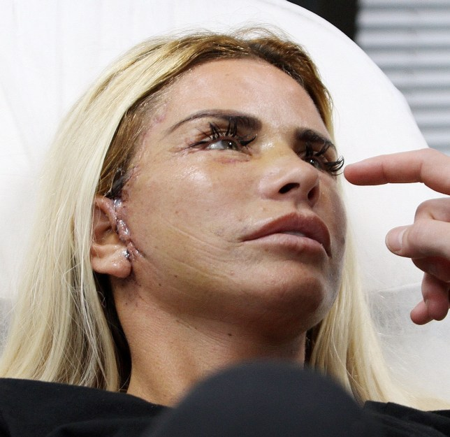 Katie Price 'fears for ears after her gruesome cosmetic surgery'