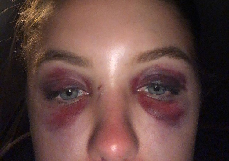 Reading festival crush: Student's nose broken by barrier at