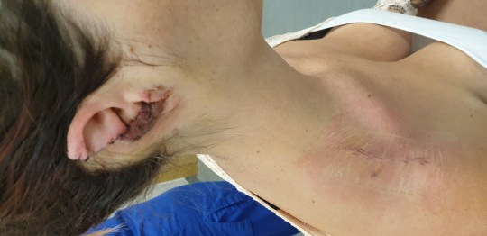 A woman has been left permanently disfigured after a savage attack by a rottweiler. Steff John was on a family holiday at a caravan park near Brean, Somerset, when most of her right ear was torn off by a dog on the evening of Friday, August 16. Surgeons have taken skin from Steff's right shoulder