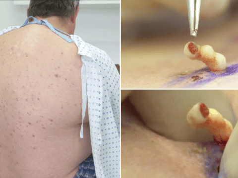 Man seeks help for cysts like 'exploding jelly lumps' covering his body