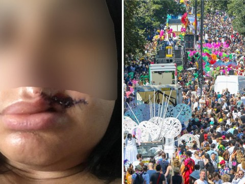 Stranger told woman he was 'the devil' then bit her lip off at carnival