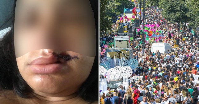 A woman had part of her lip bitten off by a stranger at Notting Hill Carnival who told her he was the devil