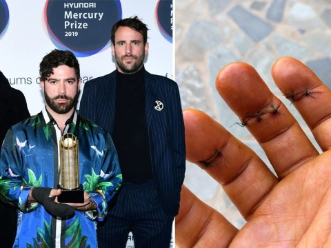 Foals reveal Yannis injured his hand in 'drunken Greek knife fight' as Felix from The Maccabees takes his place to perform