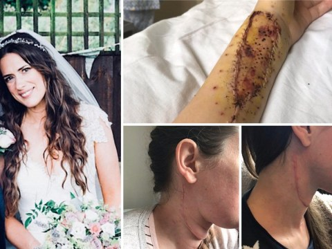 Woman with tongue cancer gets a new one using skin from her arm