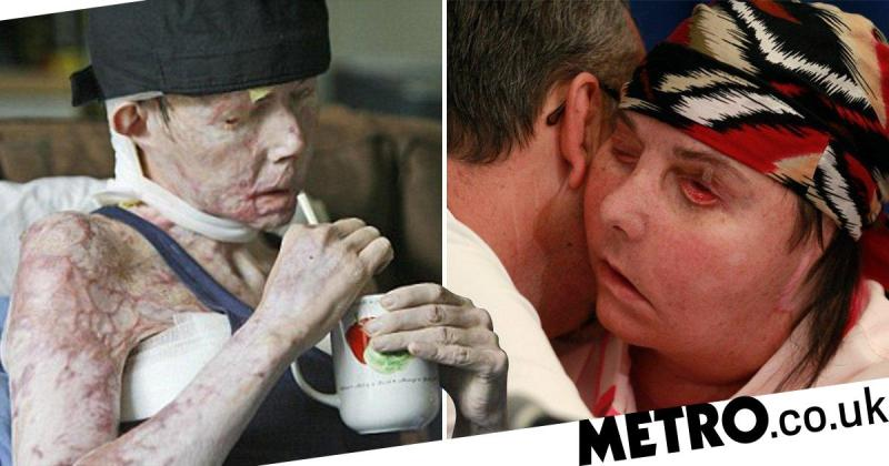 Woman badly burned by abusive husband needs second face transplant