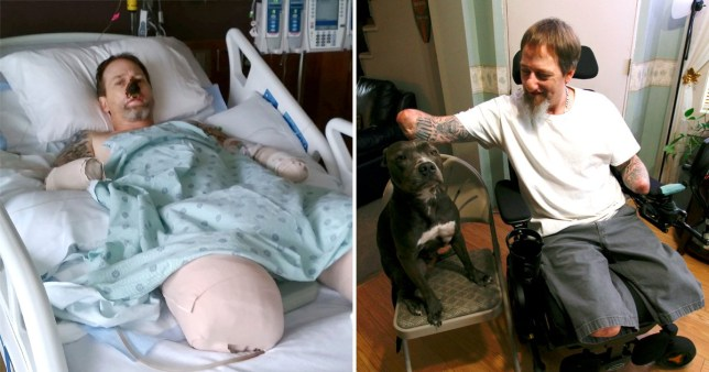 Man almost dies after being licked by dog