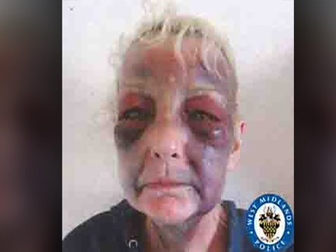 Domestic violence survivor shares harrowing images to urge other victims to get help