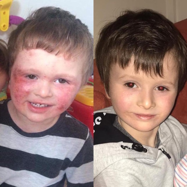 Child's Farm Cream before and after