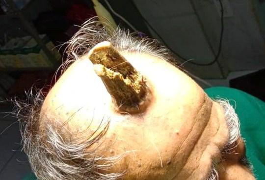 Fotos desgarradoras muestran cómo un enorme cuerno de diablo de cuatro pulgadas tuvo que ser removido de la cabeza de un hombre.  Ver la historia SWNS SWOChorn.  El asombroso cuerno de unicornio había estado creciendo durante cinco años después de comenzar como un bulto en la cabeza.  Ha crecido en tamaño desde 2014 sobre la cabeza del agricultor de 74 años, Shyam Lal Yadav.  Shyam, de la aldea de Rahli en Madhya Pradesh, India, desarrolló el crecimiento horrible después de una lesión que condujo a la formación de un cuerno sebáceo raro (cuerno del diablo).  La legión benigna brotó de su cabeza y con el tiempo ha crecido en tamaño hasta el punto en que se elevaba por encima de su cráneo.  Está hecho de queratina, que se encuentra en las uñas de los pies y el cabello humano, y el barbero de Shyam lo ha mantenido bajo control.  Pero el crecimiento se volvió demasiado agresivo, y posiblemente maligno, por lo que los médicos decidieron cortarlo.  La operación se realizó en el Hospital Bhagyoday Tirth en la ciudad de Sagar, India, después de que Shyam acudiera al Hospital Medical College administrado por el gobierno en busca de ayuda.