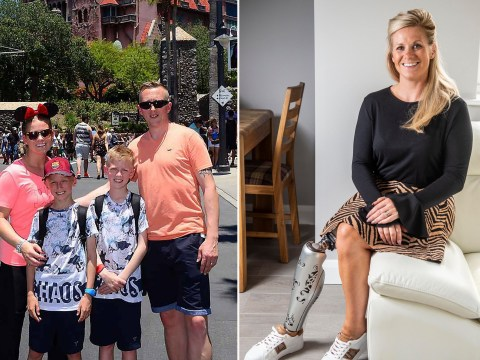 Woman who spent 20 years hiding amputated leg finally learns to love her body